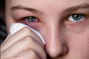 Что такое аллергический конъюнктивит?