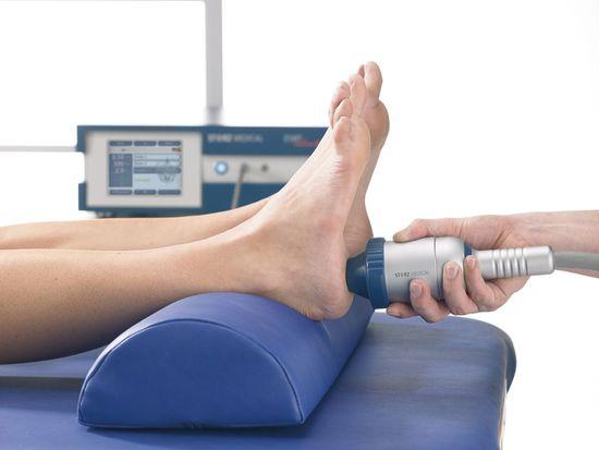 Что такое ударно-волновая терапия пяточной шпоры?